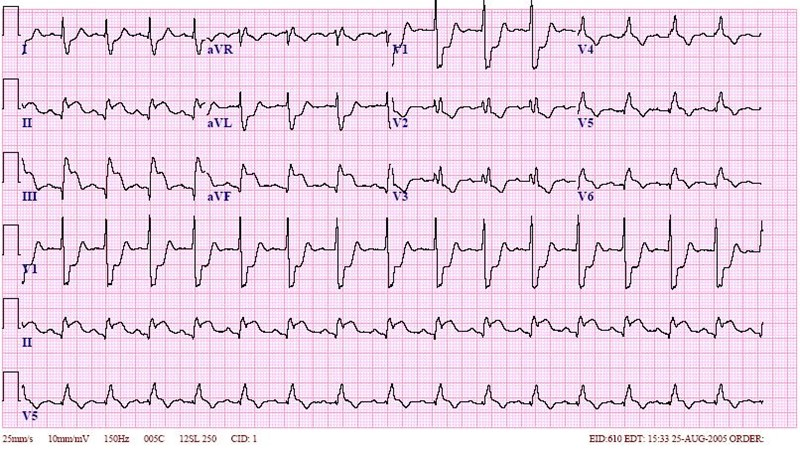Inferior wall mi and rbbb ecg 2 learntheheart com