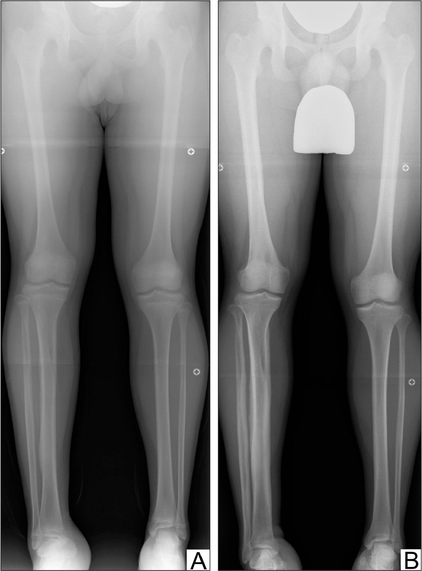 Computed radiography–based modified radiographs of a patient with neurofibromatosis type 1 at age 11 years (A) and 16 years (B) showing overgrowth of the right tibia associated with cortical thickening and growth impairment of the ipsilateral femur.