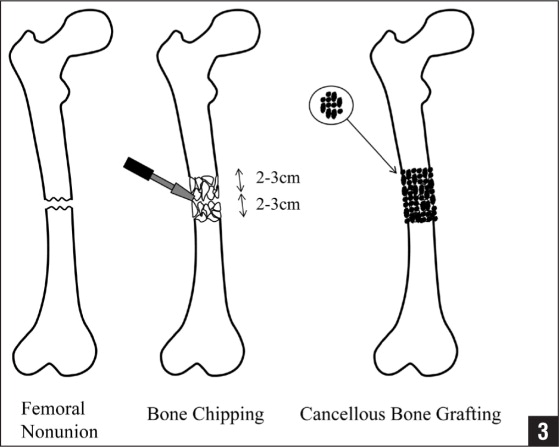 technique to prepare the bed for autologous bone grafting