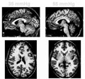 Chapter 26: Functional Brain Imaging in GI Neurophysiology