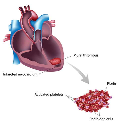 Apical Mural Thrombus Treatment Of Heart Attack Mi Complications