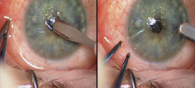 Figure 5. Starting from the central region of the cornea, the epithelium is removed in a circular manner.