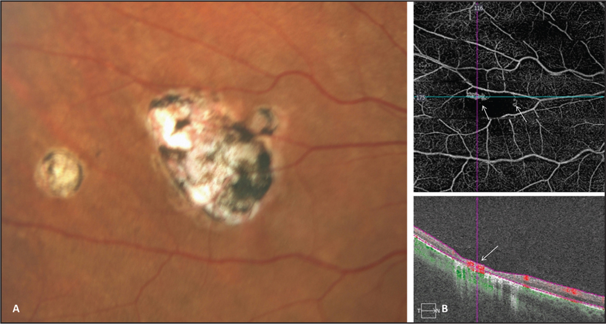 What is the standard treatment for retinal scarring?