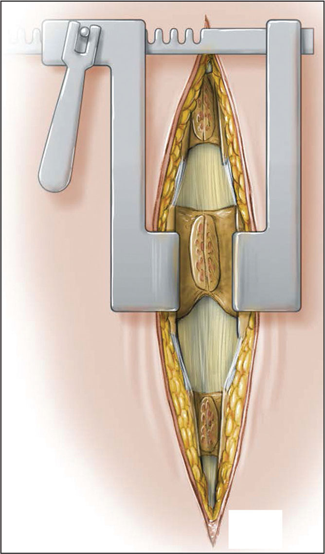 Technique extended to a multilevel decompression. (Used with permission of the Mayo Foundation for Medical Education and Research, all rights reserved.)