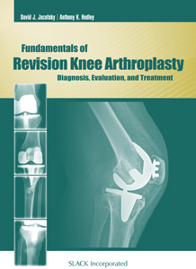 Fundamentals of Revision Knee Arthroplasty: Diagnosis, Evaluation, and Treatment