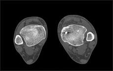 axial CT scan