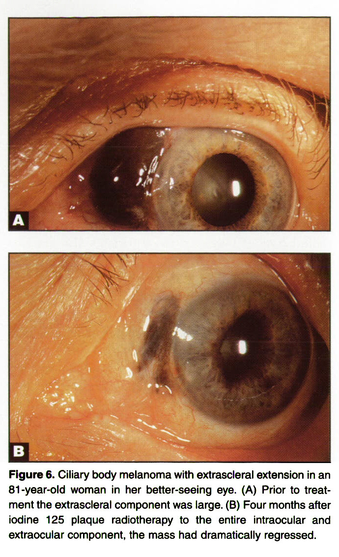figure 6 ciliary body melanoma with extrascleral extension in an 81 year old - Ophtalmic 55 Colors