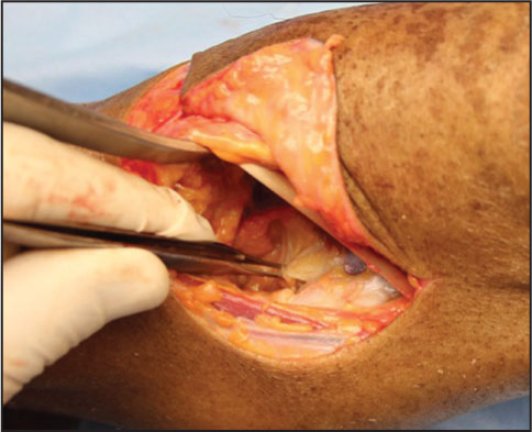 Posterior capsule and the tibial insertion of the posterior cruciate ligament.