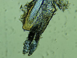 Two Demodex attached to the hair follicle root.