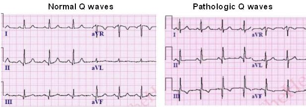 Abnormal Q Wave pathologic q waves on ecg learntheheart.com