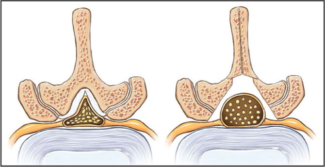 Preoperative and postoperative appearance after central and lateral recess decompression. (Used with permission of the Mayo Foundation for Medical Education and Research, all rights reserved.)