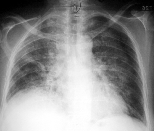 steroids to treat lung cancer in dogs