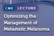 Optimizing the Management of Metastatic Melanoma: Clinical Insights for Selecting First-Line Therapy