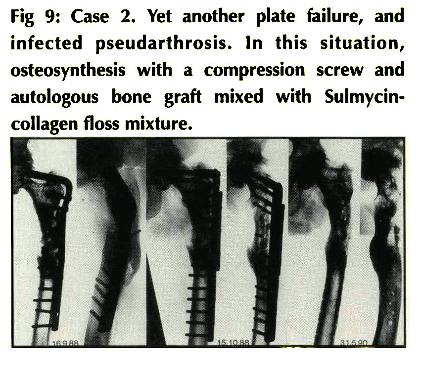 Comparison of the effect on bone healing process of different