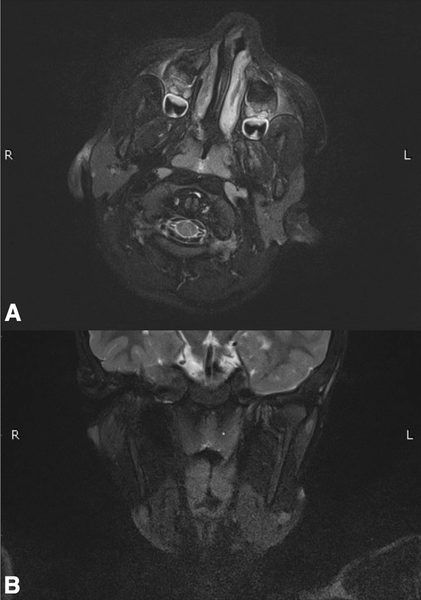 (A) Axial and (B) coronal T2 fat-suppressed sequences at the upper neck show normal architecture of both (A) parotid and (B) sub-mandibuler glands.