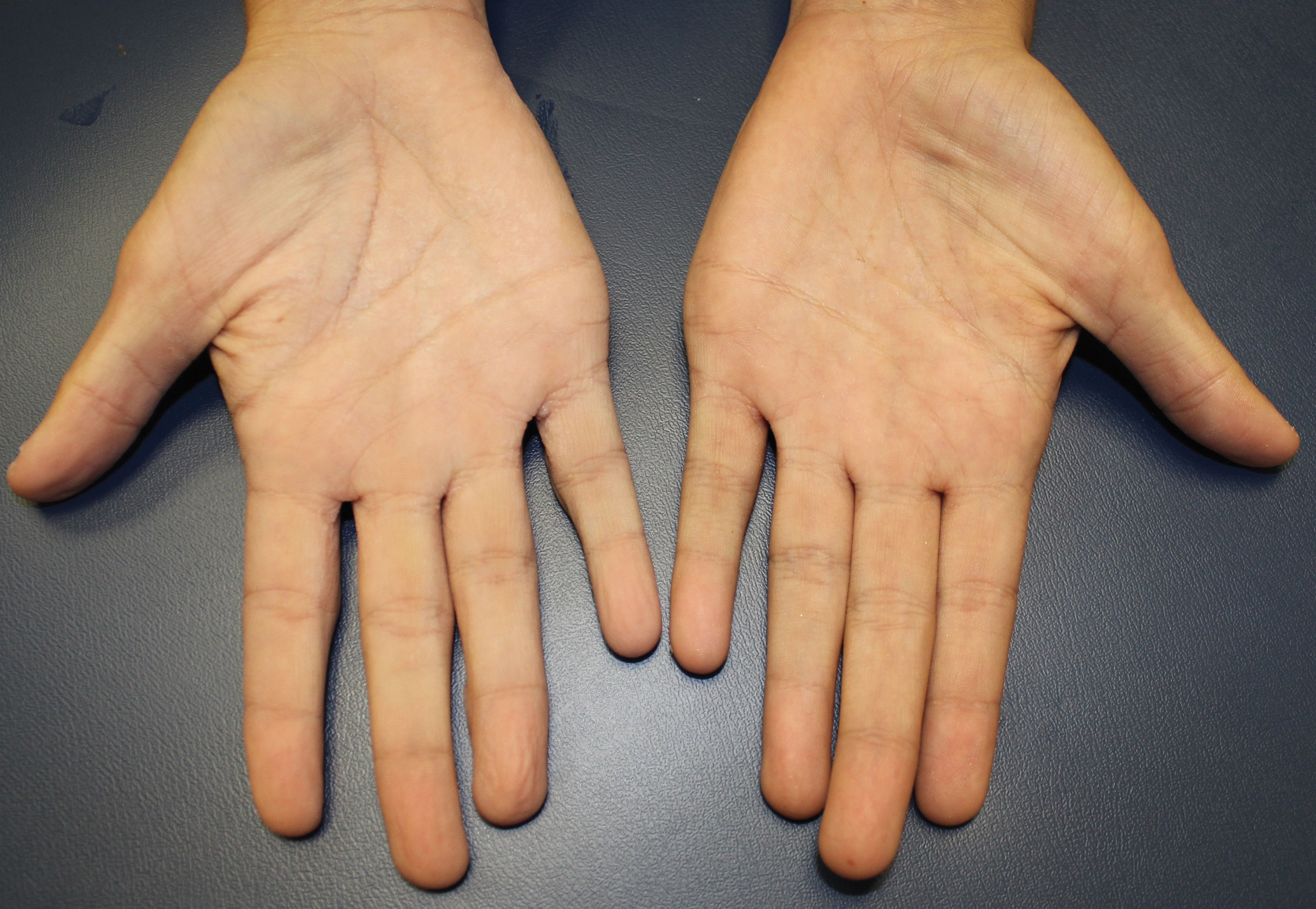Old hands palms