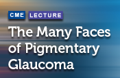 The Many Faces of Pigmentary Glaucoma