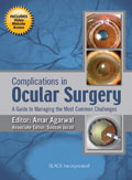 Complications in Ocular Surgery