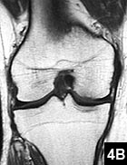 Figure 4B: T2-weighted MRI of the right knee showing almost normal signal intensity 3 months later