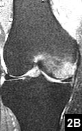 Figure 2B: T2-weighted MRI showing corresponding increased signal intensity within the medial femoral condyle