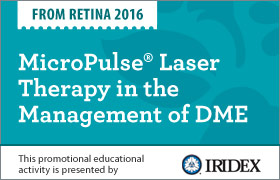 MicroPulse Laser Therapy in the Management of DME