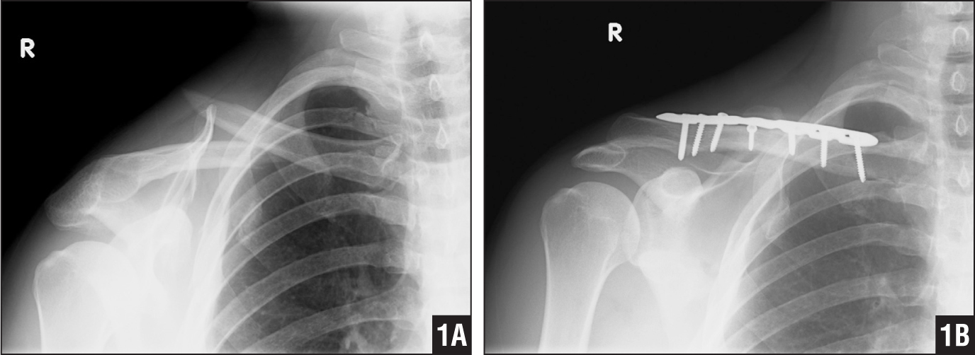 Image Gallery Midclavicular Fracture