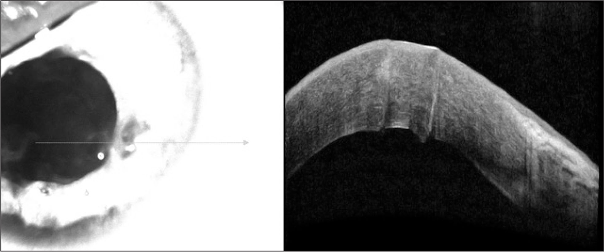 Anterior segment optical coherence tomography of the patient's left eye with corneal lesions in November 2011.