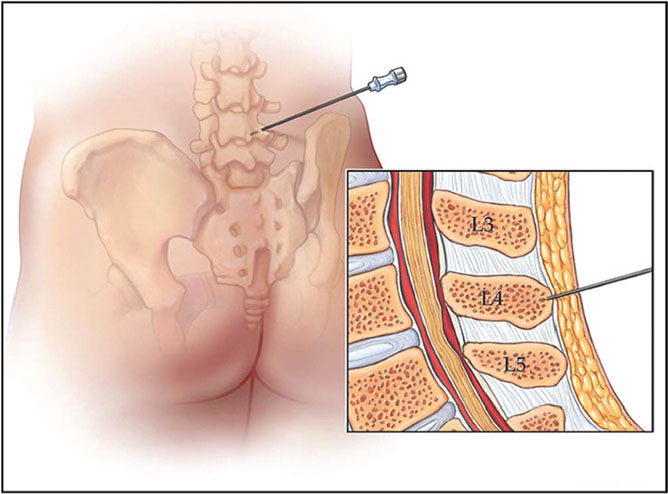 Needle localization and marking of the spinous process. (Used with permission of the Mayo Foundation for Medical Education and Research, all rights reserved.)
