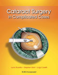 Cataract Surgery in Complicated Cases