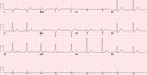 After Cardioaversion WPW Afib