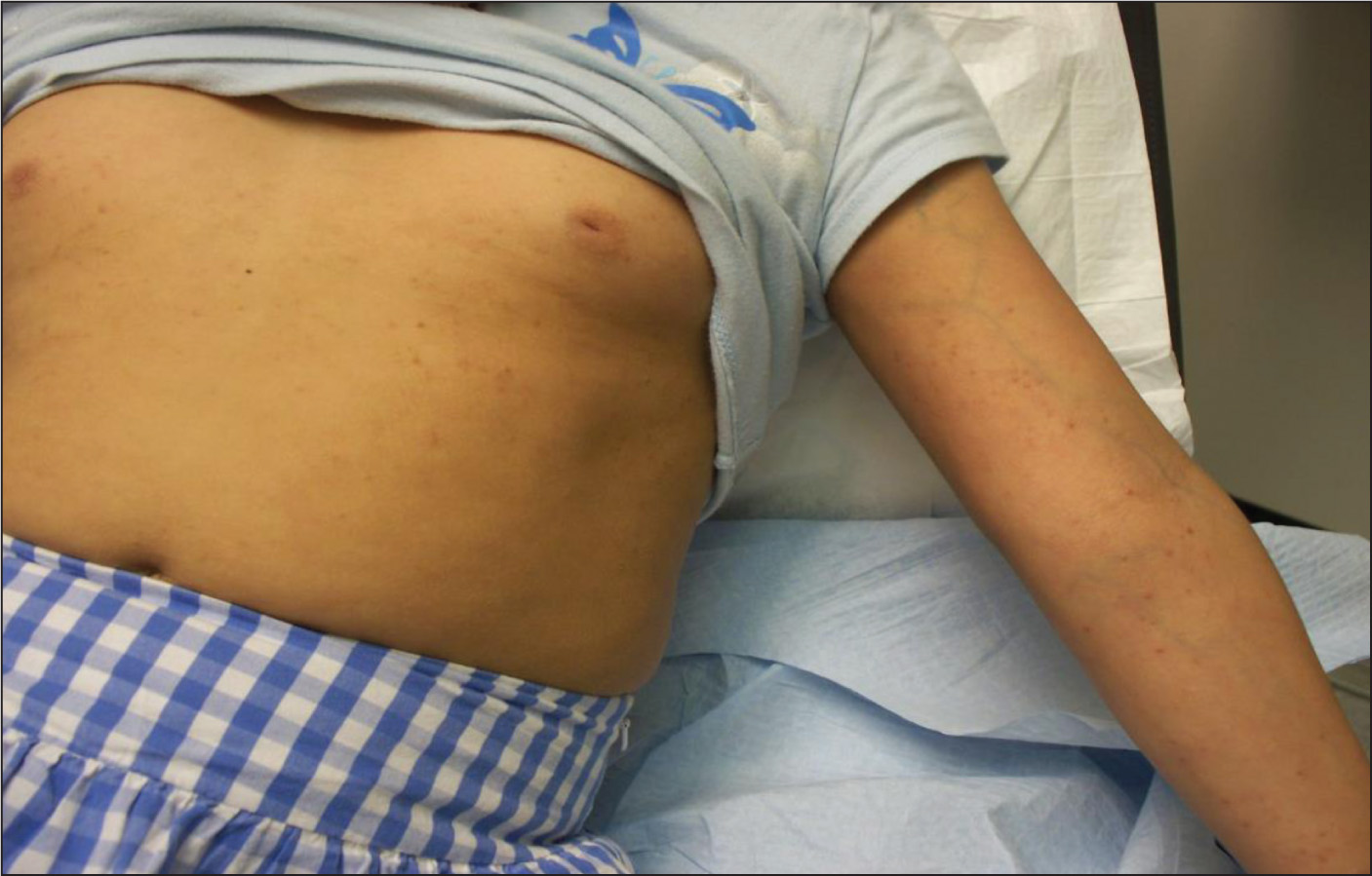 Hundreds of tan-brown, 1- to 2-mm papules distributed on the upper chest, flexor surfaces of the arms, the forearms, and in a band-like distribution across the upper thighs.Images courtesy of Kavita Beri, MD.