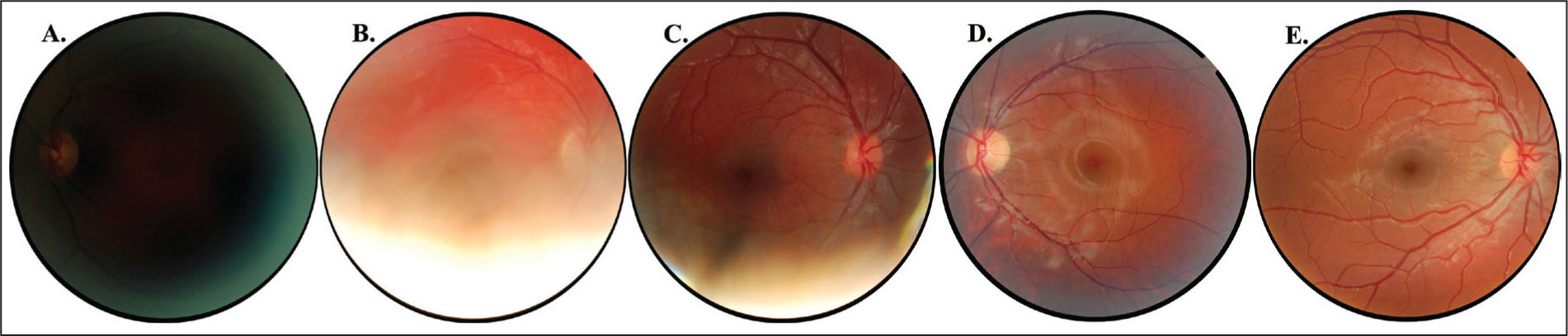 Examples of images obtained during the screening process. (A) Grade 1: Optic nerve is barely visible. Photograph not of clinical value. (B) Grade 2: Optic nerve, superior arcade, and small portion of inferior arcade are seen. Approximately 50% of the fundus is obscured. (C) Grade 3: Optic nerve, macula, and superior arcade are completely visible; majority of the inferior arcade can be evaluated. Approximately 20% of the fundus is obscured. (D) Grade 4: Optic nerve, macula, and superior and inferior arcades are completely visible. Fundus photograph shows minor peripheral image blurring. (E) Grade 5: Optic nerve, macula, and superior and inferior arcades are completely visible. There is no image distortion of any kind.
