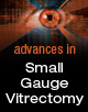 Advances in Small Gauge Vitrectomy