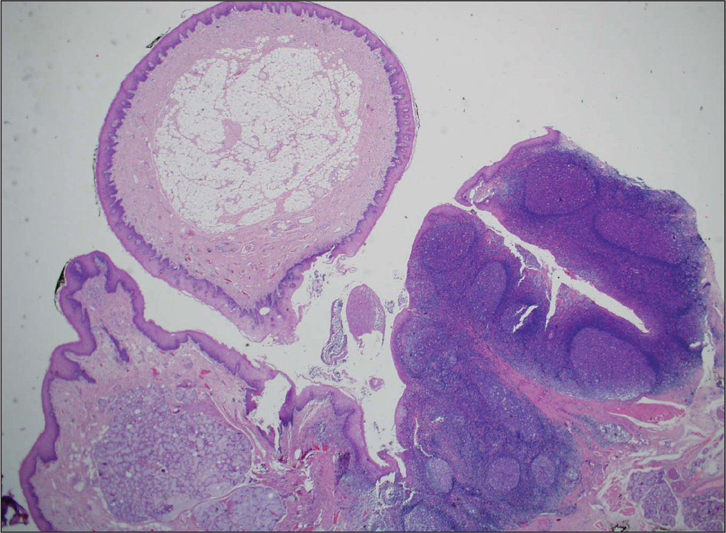Microscopic examination shows a polypoidal lesion lined by squamous epithelium with parakeratosis. Note the deep crypt in the lymphoepithelial tissue.