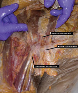 Cadaveric image demonstrating
